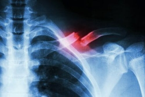 Złamanie kości