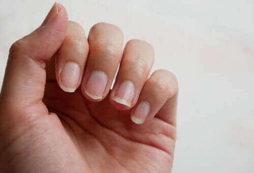Łamliwe paznokcie – cztery naturalne sposoby leczenia
