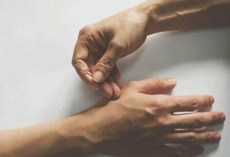 Akupunktura leczy ból stawów