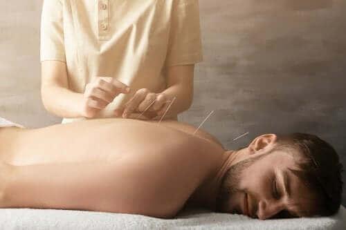 Czy akupunktura leczy ból stawów? Poznaj kilka istotnych faktów