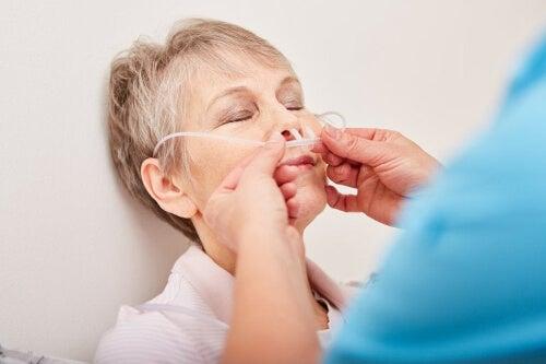 Zakładanie sondy nosowo-żołądkowej