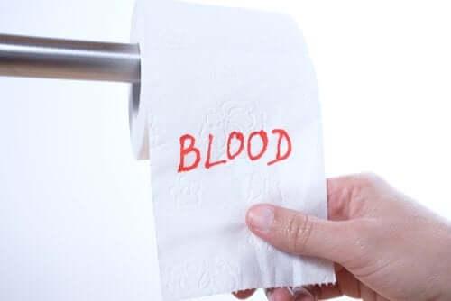 Krew w kale – czy wiesz, dlaczego tak się dzieje?
