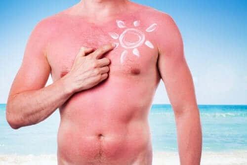 Oparzenie słoneczne - szkodliwy wpływ słońca na skórę