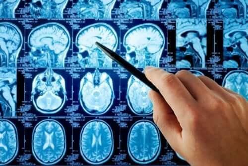Prześwietlenie mózgu