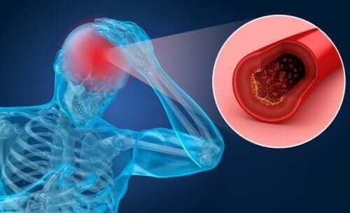Udar mózgu: objawy i czynniki podwyższonego ryzyka