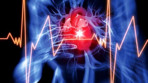Problemy z sercem