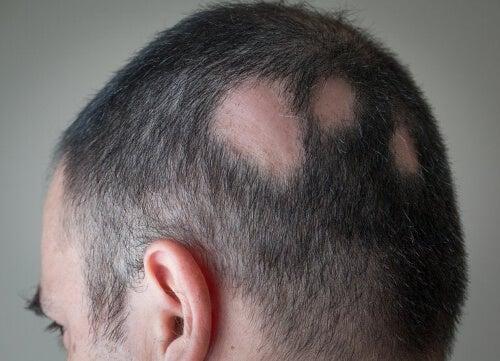 Choroby skórne : łysienie plackowate