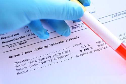 Leczenie kwasicy metabolicznej oraz przyczyny choroby
