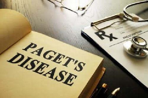 Choroba Pageta kości - co musisz o niej wiedzieć?