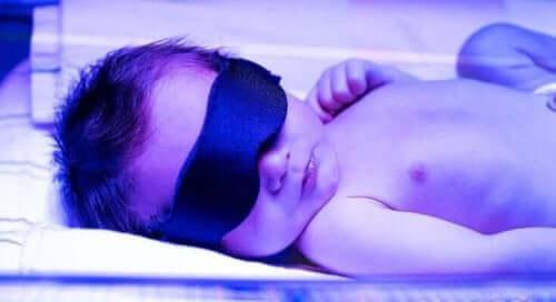 Dziecko w inkubatorze - żółtaczka u noworodka