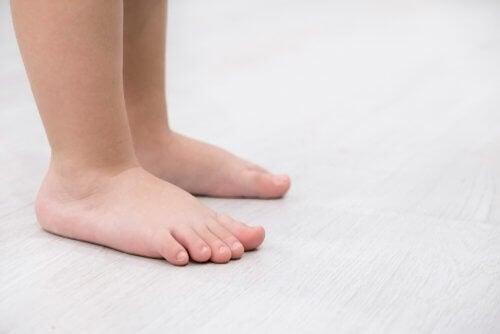 Płaskostopie: cechy charakterystyczne i leczenie
