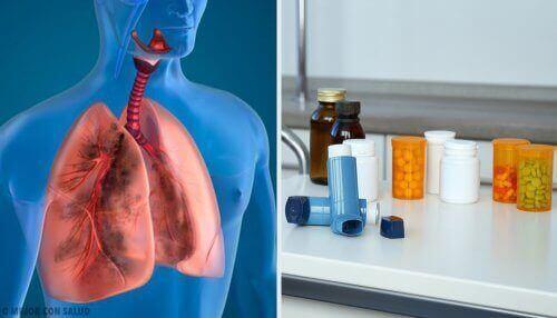 Leczenie płuc - terapia aerozolowa