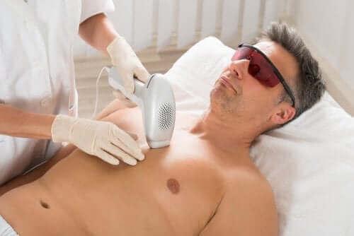 Mężczyzna poddaje się zabiegowi depilacji laserowej