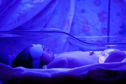 Żółtaczka u noworodka: co powinnaś wiedzieć?