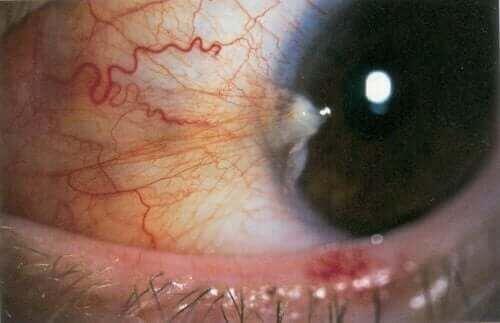 Skrzydlik i oko z tym schorzeniem