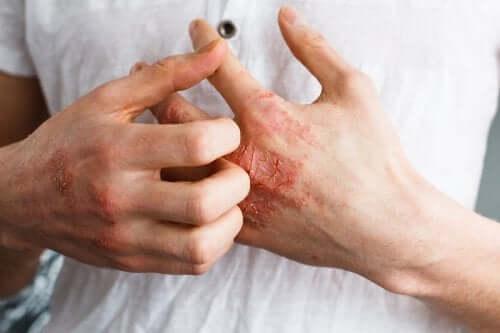 Alergiczne zapalenie skóry – na czym polega ta choroba
