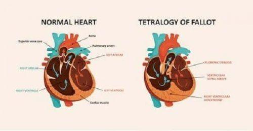 Tetralogia Fallota