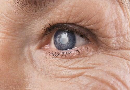 Hiperglikemia powoduje problemy ze wzrokiem