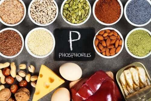 Hiperfosfatemia: zaburzenie równowagi fosforanowej w organizmie