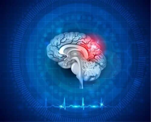 Ilustracja mózgu - niedotlenienie mózgu