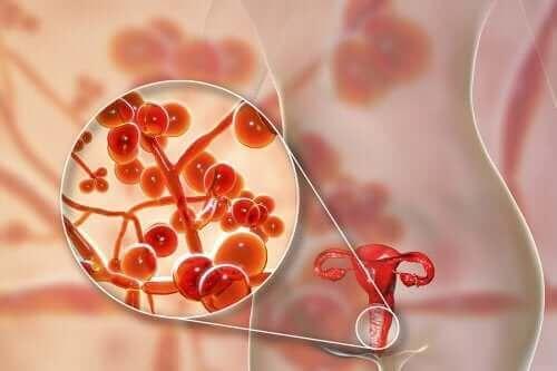Mycoplasma genitalium: przyczyny, objawy i leczenie