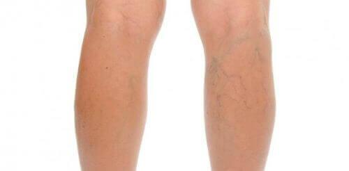 Nogi z żylakami - Venoruton