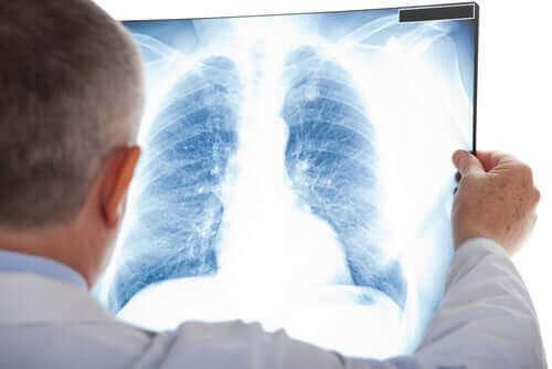 Zdjęcie RTG płuc - zapalenie opłucnej