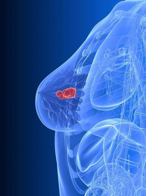 Ilustracja raka piersi