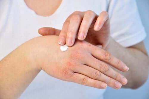 Kobieta smarująca suche i spękane dłonie kremem
