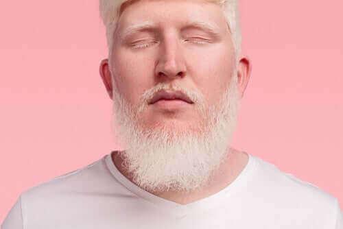 Mężczyzna - albinosi
