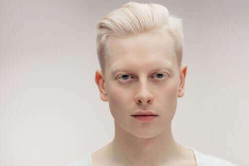 Albinosi: co warto wiedzieć o albinizmie?