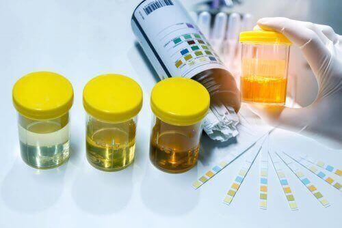 Próbki moczu - azotyny w moczu