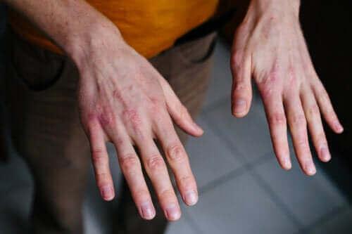 Suche i spękane dłonie: ochrona przed zimnem