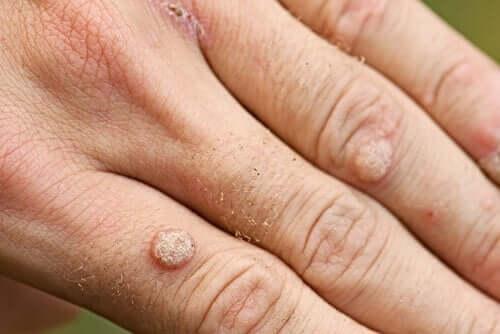 Brodawki - ich rodzaje i sposoby leczenia