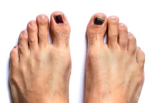 Czarne paznokcie u stóp: jak je leczyć?