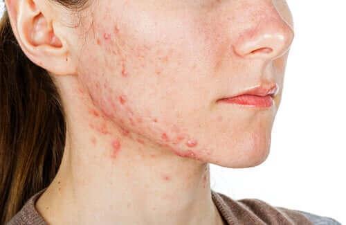 Młoda kobieta z trądzikiem - izotretynoina i jej działanie