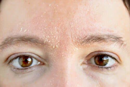 Czerwona skóra na twarzy