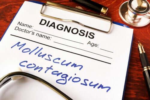 Mięczak zakaźny - poznaj objawy i przyczyny tej choroby?
