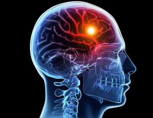 Zator w mózgu
