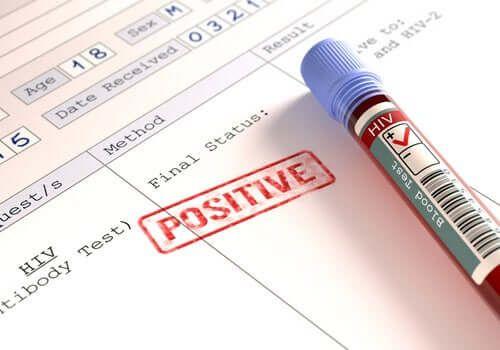 Czy osoby zarażone HIV są bardziej zagrożone przez koronawirusa?