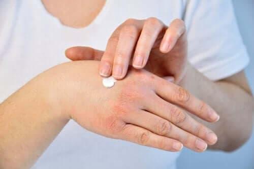 Kobieta smarująca dłonie