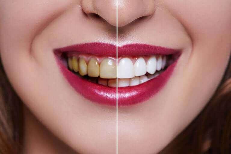 Kobieta z żółtymi i białymi zębami