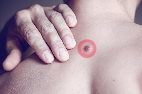 Grudki tłuszczu na plecach: z czego wynikają?