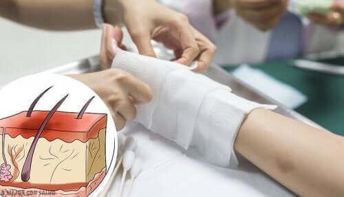 Lekarz leczący oparzenie