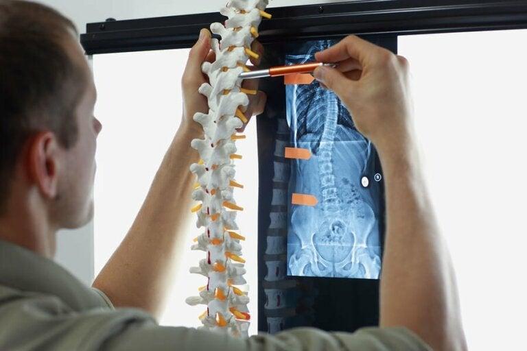 Przerzuty nowotworowe do kości - objawy i leczenie