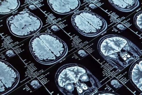 Rezonans mózgu