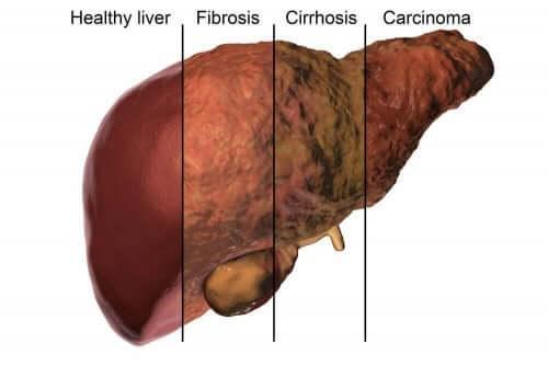Stan zdrowia wątroby