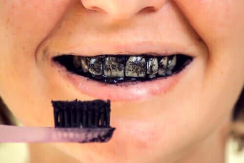Węgiel aktywowany i ryzyko dla zdrowia jamy ustnej