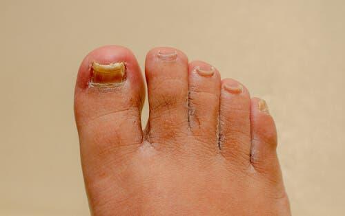 Grzybica paznokci dłoni i stóp: co mi pomoże?