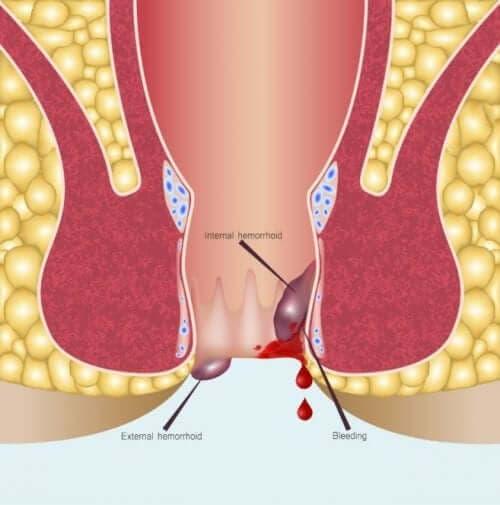 Anoskopia: na czym polega ta procedura?